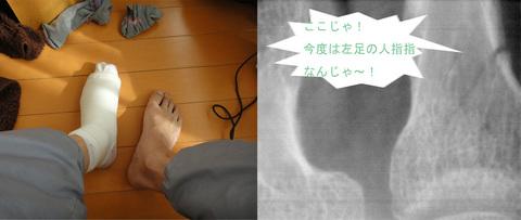 左足骨折_edited-1.jpg